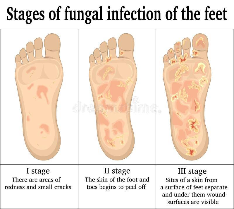 Fungal infekcja na ciekach royalty ilustracja