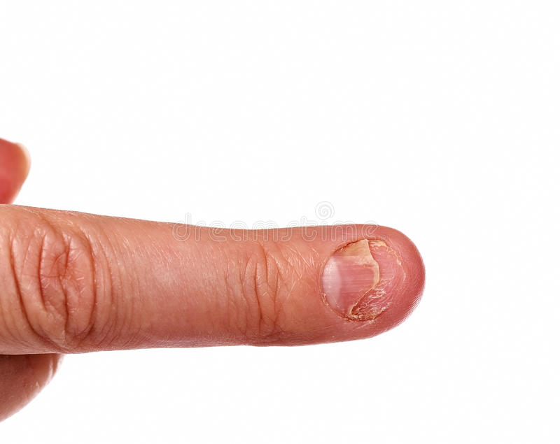 Fungal nail infection and damage stock photography