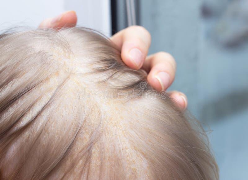 Fungal skóry choroby seborrheic dermatitis w dziecka głowie, w górę, seborrhea skorupa, dermatologia obrazy stock