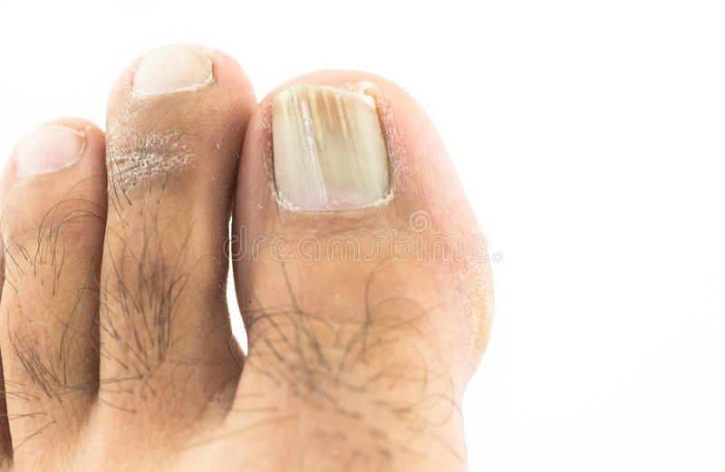 Funghi all'unghia del piede immagini stock