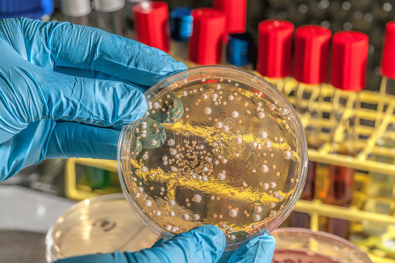 Fungi on agar plate stock images
