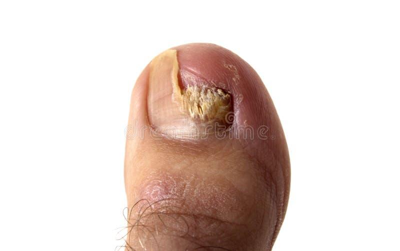 Fungo dell'unghia del piede fotografia stock