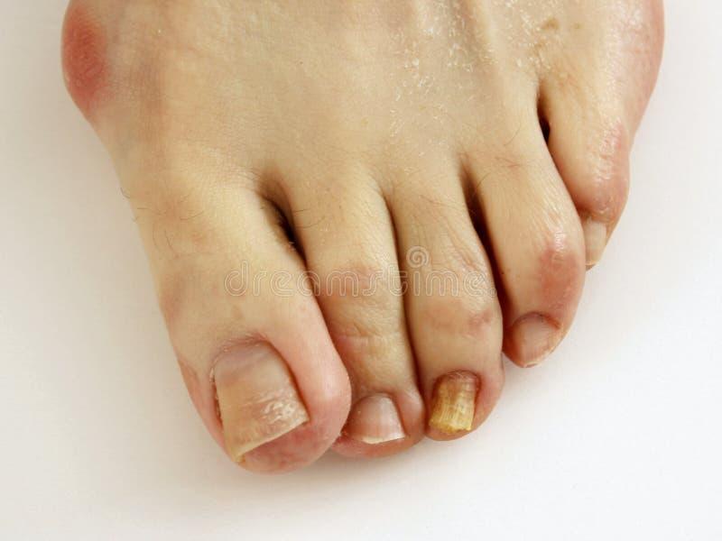 Trattamento della pelle di fungo di piede