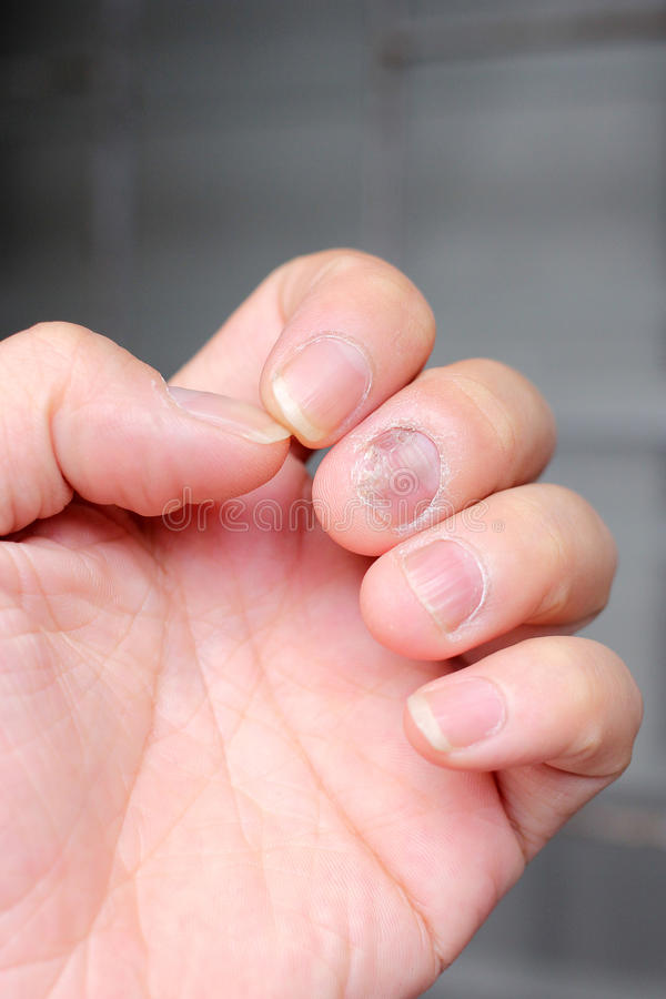 Fungus Infection on Nails Hand, Finger with onychomycosis. - soft focus stock images