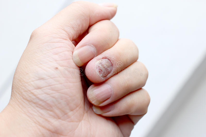 Fungus Infection on Nails Hand, Finger with onychomycosis. - soft focus stock image