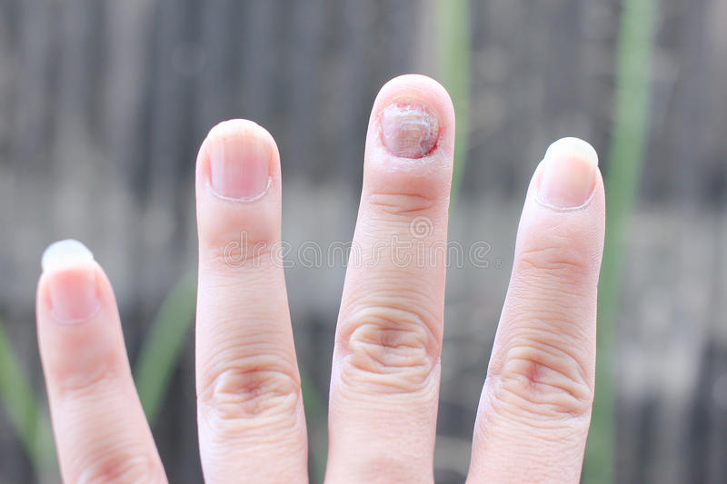 Fungus Infection On Nails Hand, Finger With Onychomycosis. - Soft ...