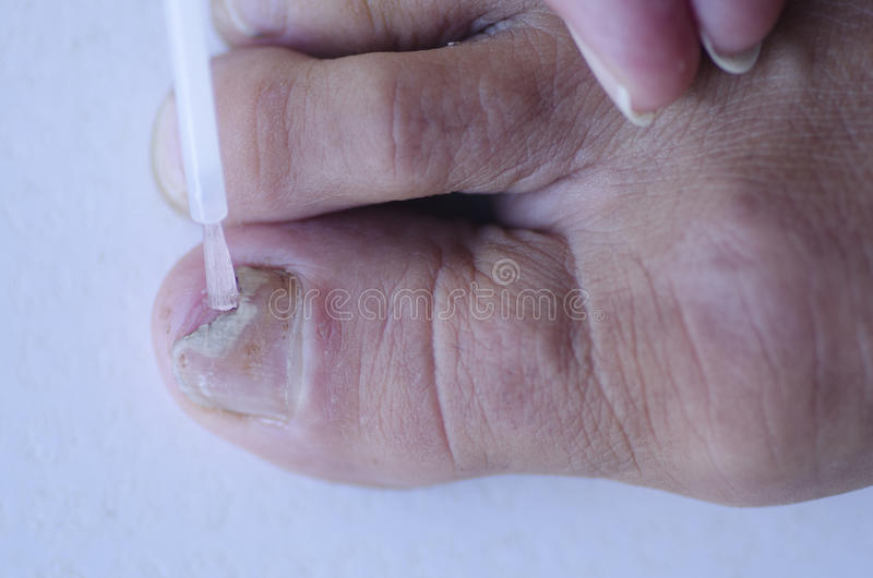 Fungus infection at toenail medical treatment. Close up image of broken toenail caused by fungus infection receiving tincture medication by brush applicator stock image