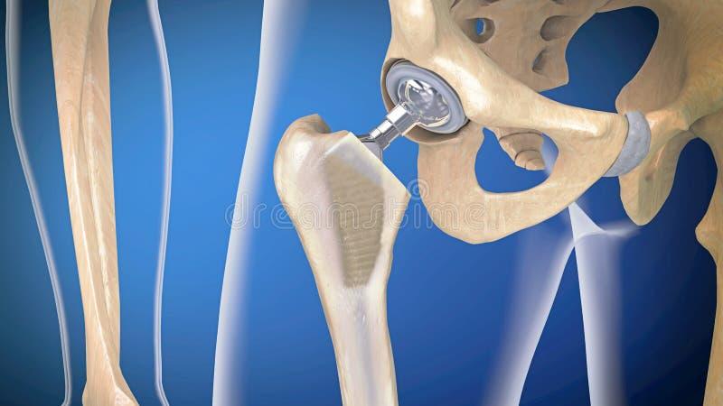 Funktion av en höftledimplantat eller en höftprotes i frontal sikt stock illustrationer
