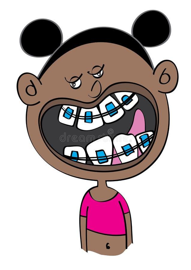 Girl Dental Braces Stock Illustrations 253 Girl Dental Braces