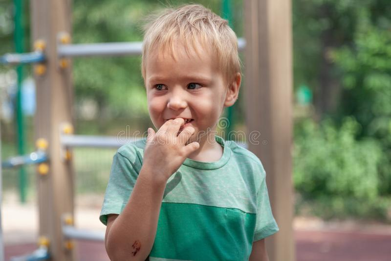 Funny cute blonde baby boy stands with fingers in mouth, smiling. Wound on the elbow, pretty real childhood. Close up portrait, emotions on the face. Outdoors royalty free stock photo