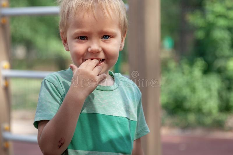 Funny cute blonde baby boy stands with fingers in mouth, smiling. Wound on the elbow, pretty real childhood. Close up portrait, emotions on the face. Outdoors stock images