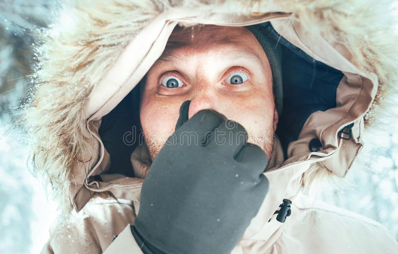 Funny man dressed in Warm Hooded Casual Parka Jacket Outerwear with frozen nose winter portrait. Health on winter time concept. Image stock images