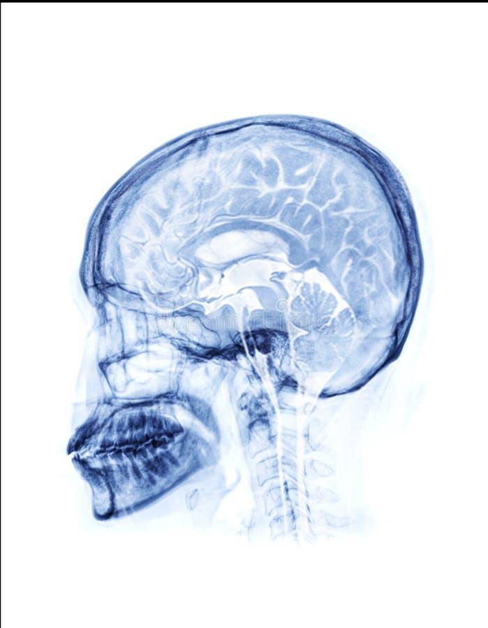 Fusione di vista laterale ai raggi X del cranio con vista sagittale del cervello della risonanza magnetica cerebrale fotografia stock