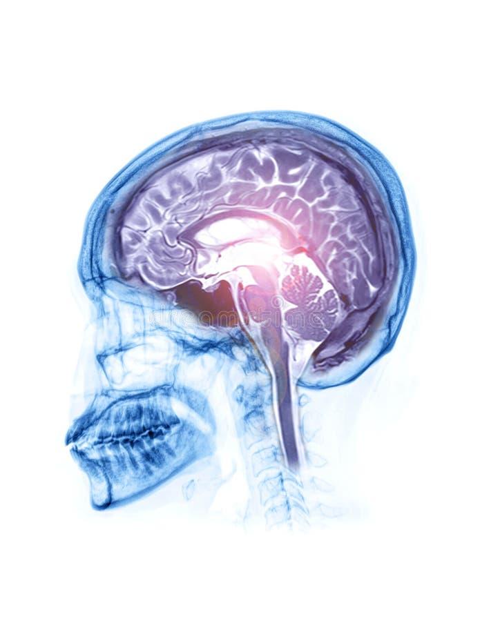 Fusione di vista laterale ai raggi X del cranio con vista sagittale del cervello della risonanza magnetica cerebrale fotografie stock