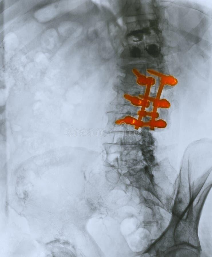 fusionstråle som visar ryggrads- x royaltyfria foton