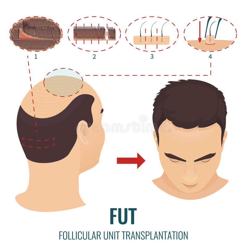 FUT-de behandeling van het haarverlies royalty-vrije illustratie