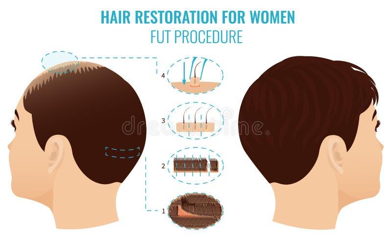 FUT-de behandeling van het haarverlies vector illustratie