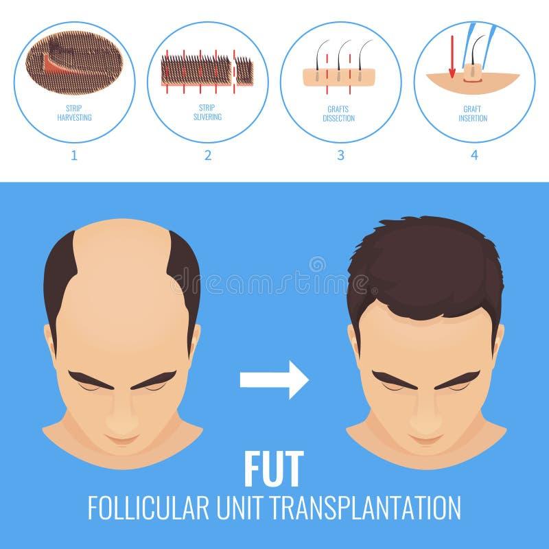 Free FUT Hair Loss Treatment Stock Photography - 91824092