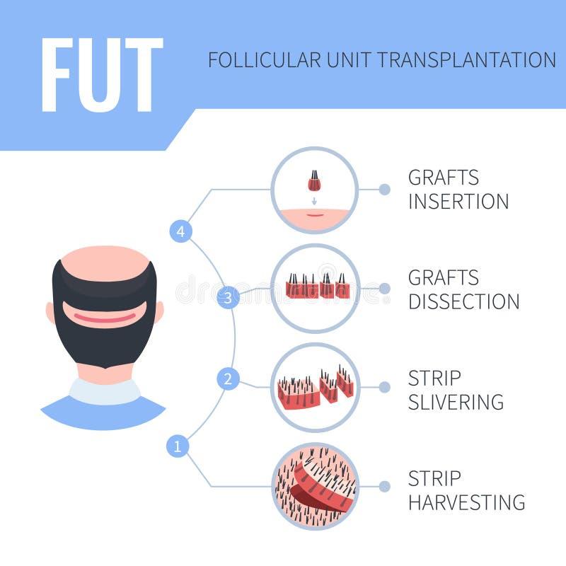 Free FUT Hair Transplantation Medical Infographics For Men Stock Image - 161093891