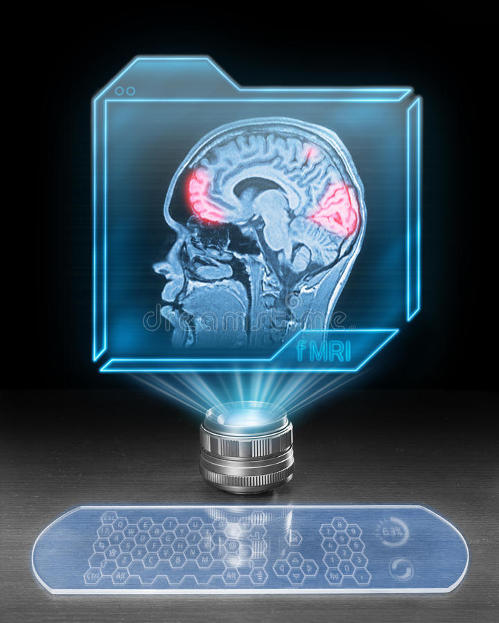Futuristic medical computer with fMRI scan stock photo