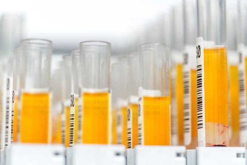 Fyllde glass provrör för laboratoriumet med orange flytande för ett experiment i en vetenskapsforskninglabb arkivfoton