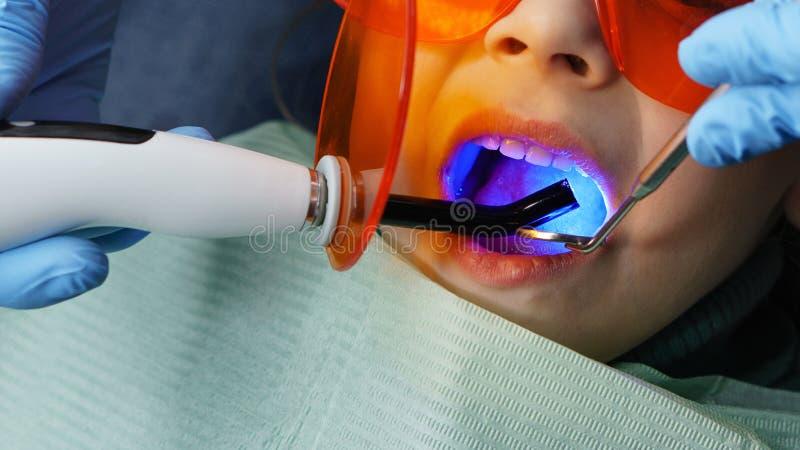 Fyllning av mjölkar tänder tand- klinik royaltyfri bild