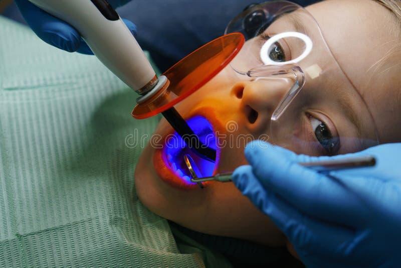 Fyllning av mjölkar tänder tand- klinik royaltyfri foto