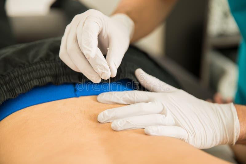 Fysioterapeut Doing Dry Puncture på baksida av den manliga patienten royaltyfria foton