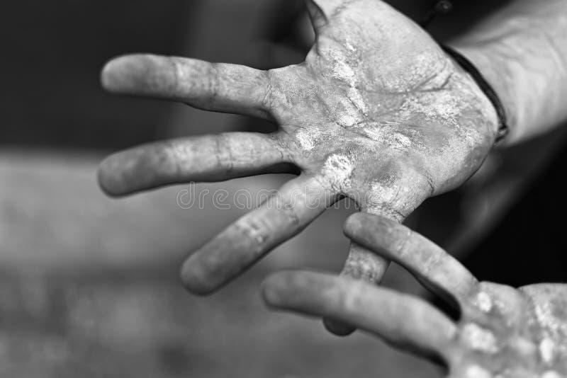 Gömma i handflatan med valkar Blåsor på de sårade händerna från manuellt arbete Hårt arbetebegrepp arkivbilder