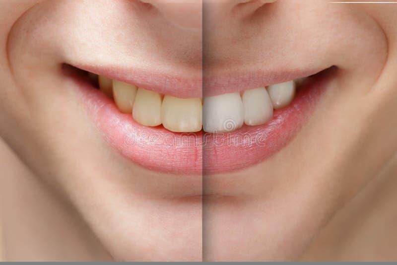 Göra vit för tänder för leende för ung man före och efter arkivbild
