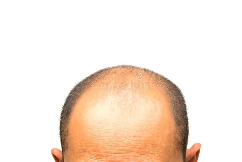 Głowa mężczyzna gubi jeden ` s włosy, glabrous na jego głowie dla starszych osob ma fotografia stock