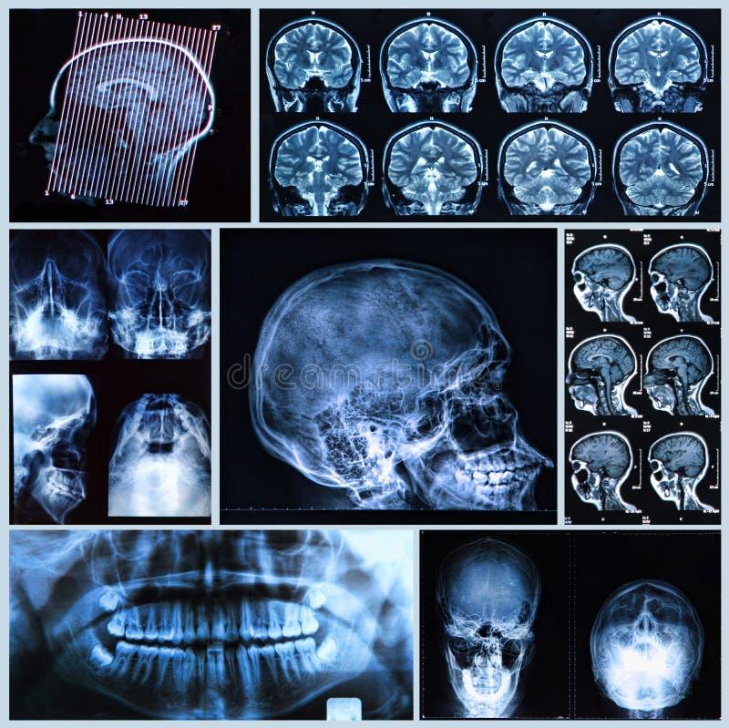 Głowy i szyi anatomia obraz royalty free