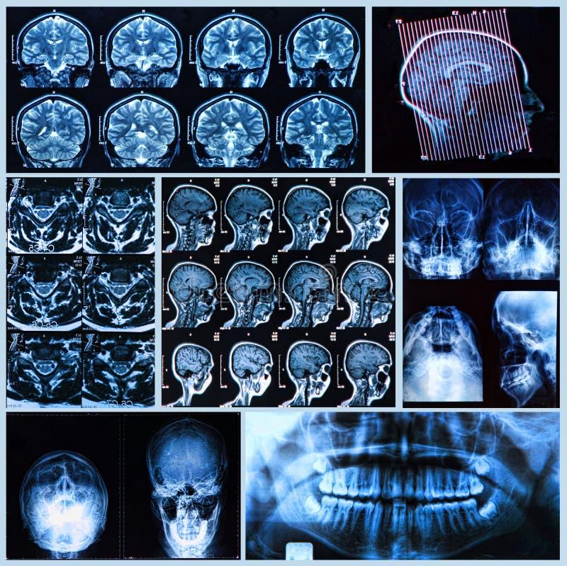 Głowy i szyi anatomia obraz stock