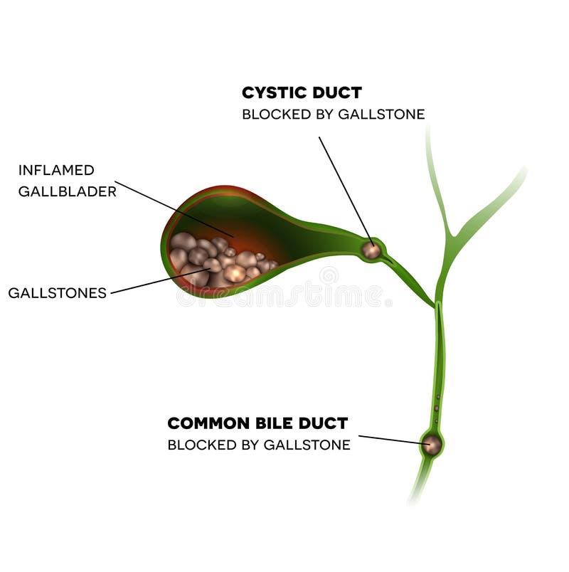 Gallbladder i kamienie royalty ilustracja