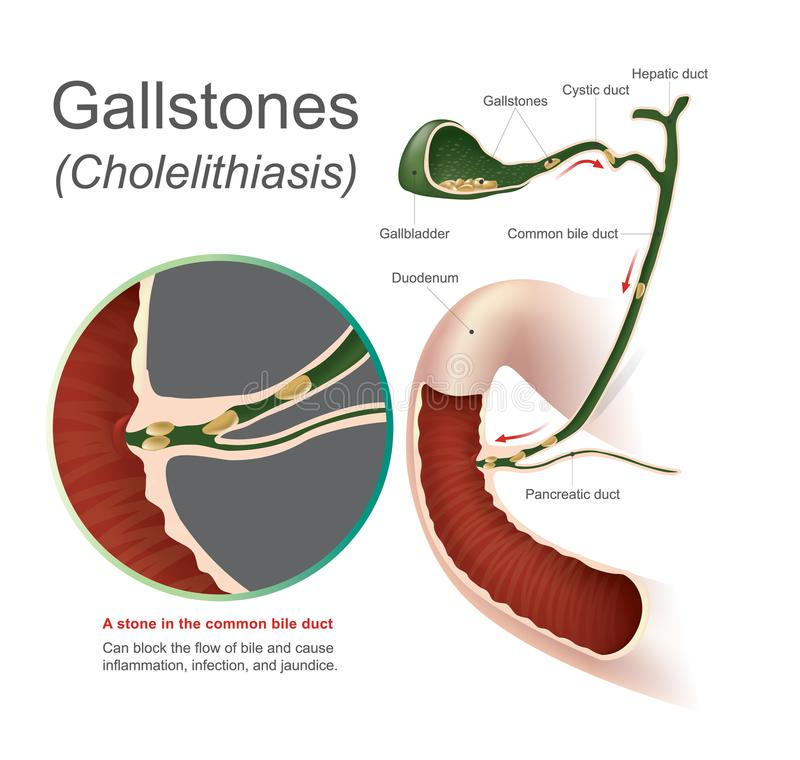 Gallstencholelithiasis vektor illustrationer