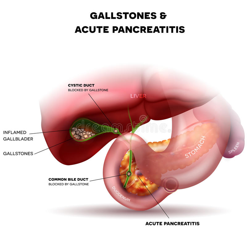 Gallstones and acute pancreatitis. Gallstones in the Gallbladder and acute pancreatitis, anatomy bright detailed illustration vector illustration
