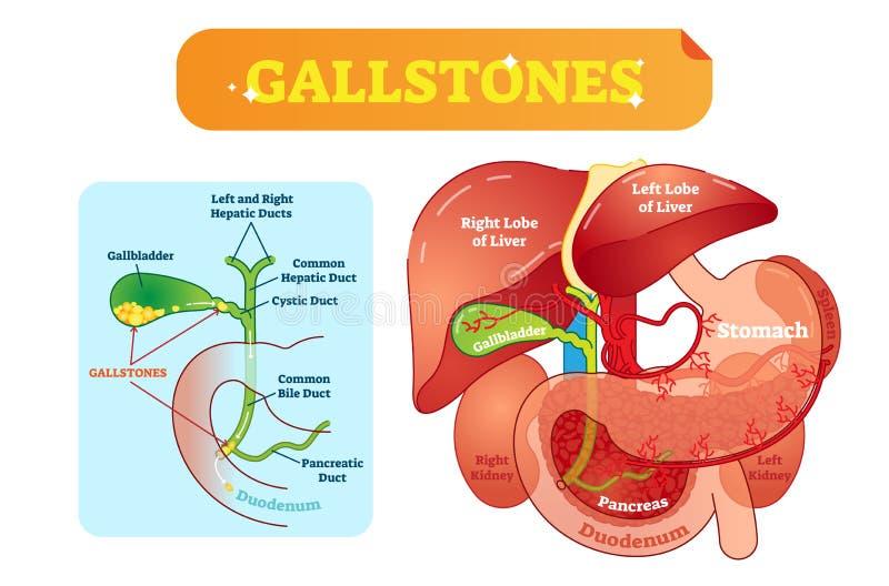 Gallstones anatomicznego przekroju poprzecznego wektorowy ilustracyjny diagram z brzusznym zagłębieniem, gallbladder, żółć kanały royalty ilustracja