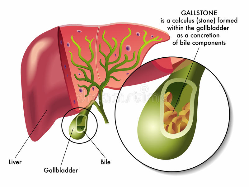 Gallstones. Illustration of the section of the gallbladder with gallstones stock illustration