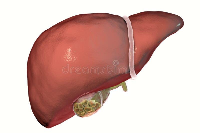 Gallstones, ilustracja pokazuje frontowego widok wątróbka i gallbladder z kamieniami ilustracja wektor