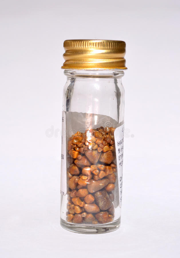 Gallstones in specimen jar. From single operation royalty free stock image