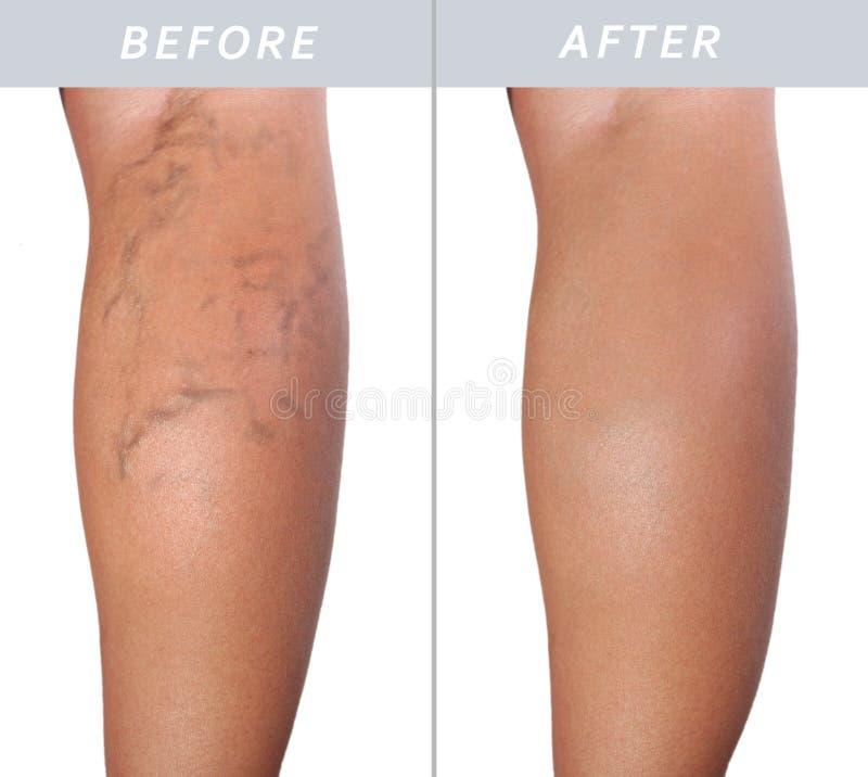 Gamba della donna adulta con le vene varicose prima e dopo il trattamento immagini stock libere da diritti