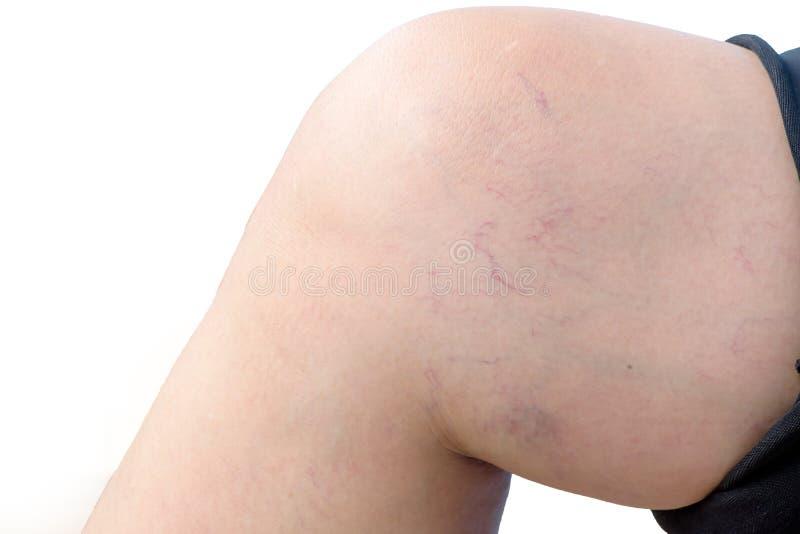 Gamba della donna con le vene varicose fotografia stock