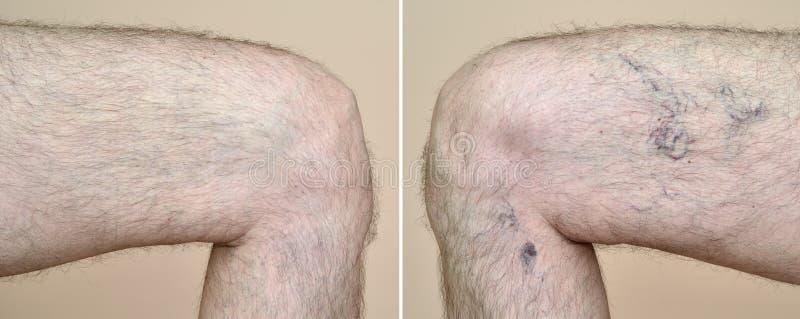 Gamba di un uomo con le vene varicose ed i capillari prima e dopo trattamento medico fotografia stock libera da diritti