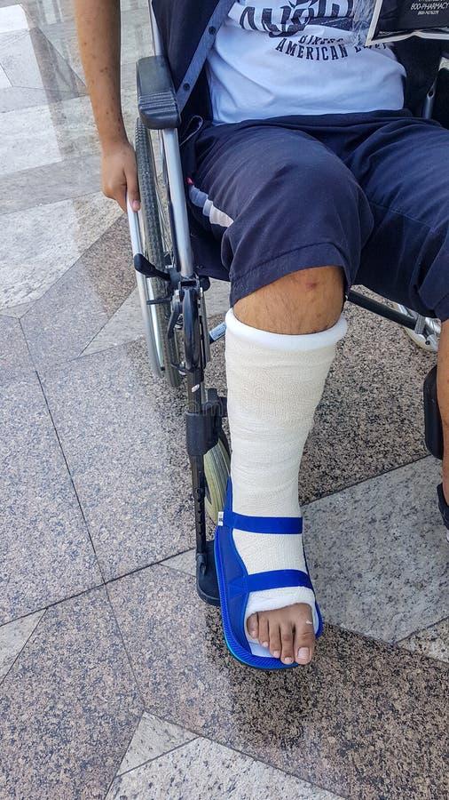 Gamba rotta in sedia a rotelle di seduta del ragazzo dell'adolescente del gesso Gamba di lesione immagini stock libere da diritti