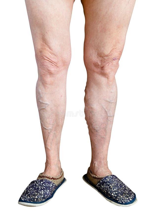 Gambe malate brutte di una donna anziana su un fondo bianco fotografia stock libera da diritti
