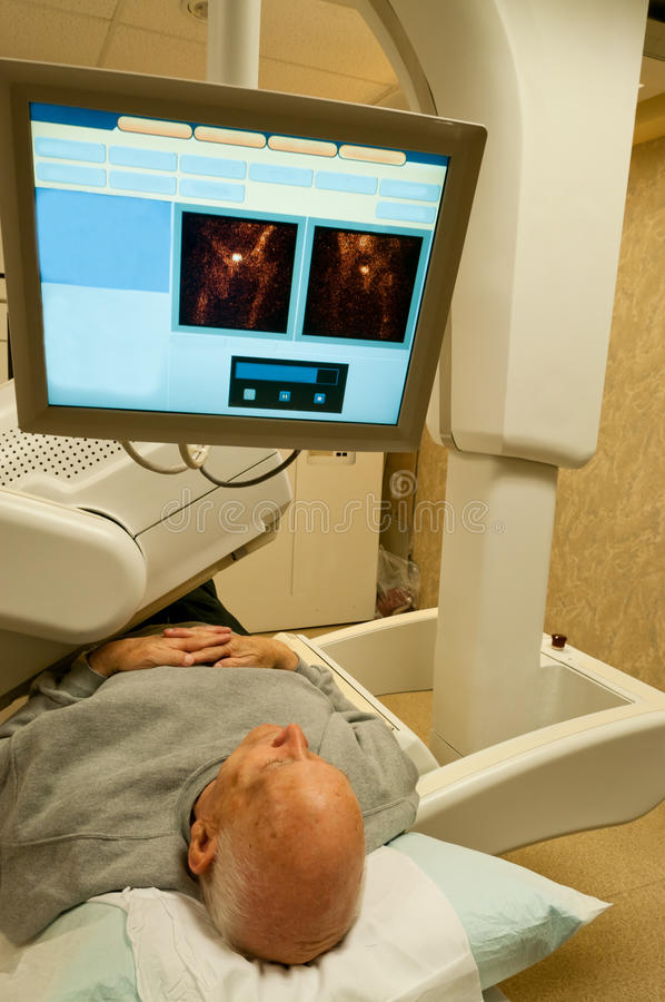 Gamma Camera Patient Image. Vertical image of the upper part of a senior male lying on a bench under a gamma camera and looking up into a screen which displays stock image