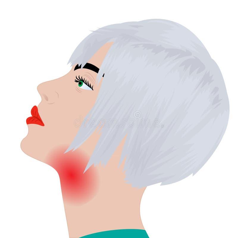 Gardło ból gardła rozognienie grypa ilustracji