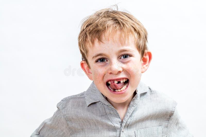 Garoto rabugento com sardas sendo irritado com seu dente desaparecido imagem de stock