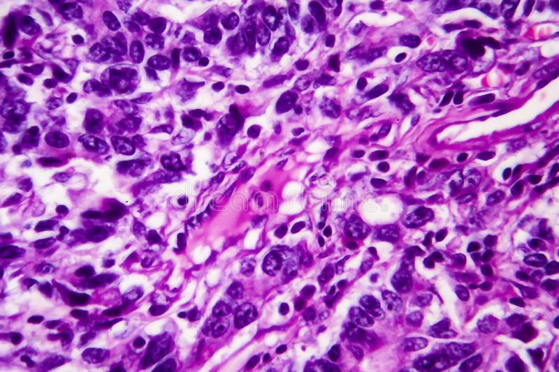 Gastric adenocarcinoma, light micrograph. Photo under microscope. High magnification stock photography