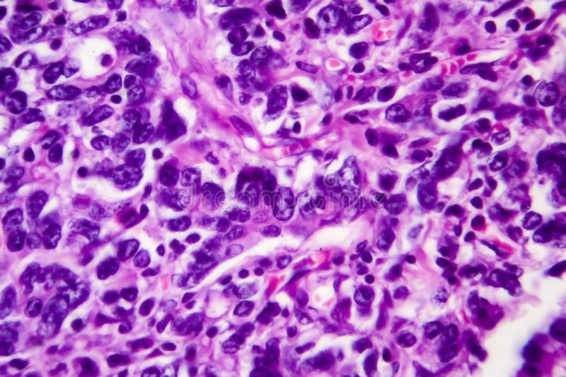 Gastric adenocarcinoma, light micrograph. Photo under microscope. High magnification stock images